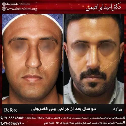 جراحی بینی غضروفی 37