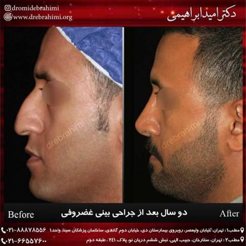 جراحی بینی غضروفی 38