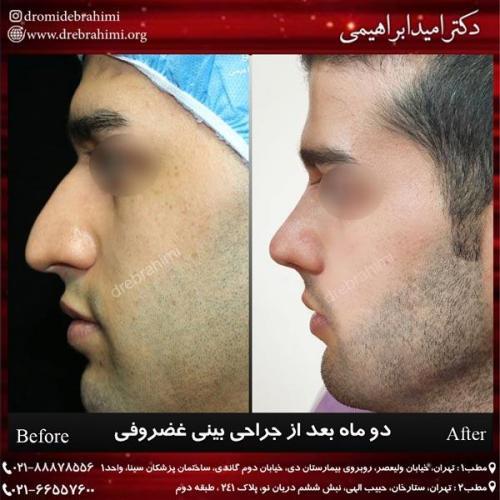 جراحی بینی غضروفی 41