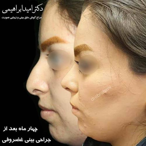 جراحی بینی غضروفی 43