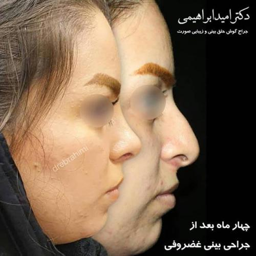 جراحی بینی غضروفی 44