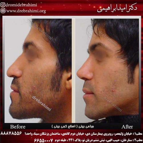 جراحی-بینی-اصلاح-کجی-بینی-5
