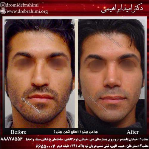 جراحی-بینی-اصلاح-کجی-بینی-6