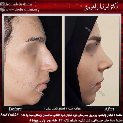 جراحی-بینی-اصلاح-کجی-بینی-8