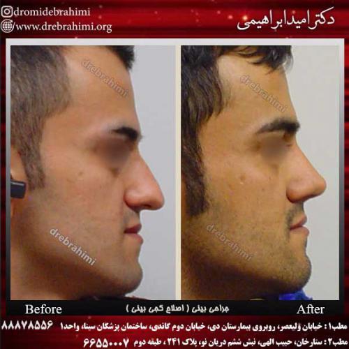 جراحی-بینی-اصلاح-کجی-بینی