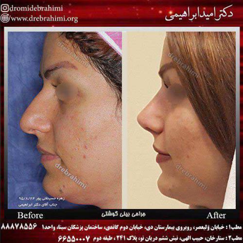 جراحی-بینی-گوشتی-3