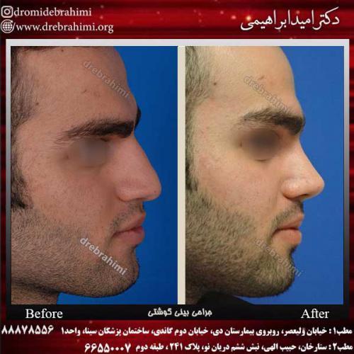 عمل-بینی-گوشتی-15