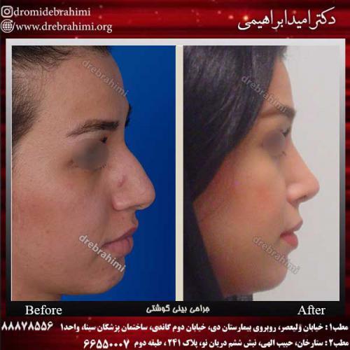 عمل-بینی-گوشتی-16