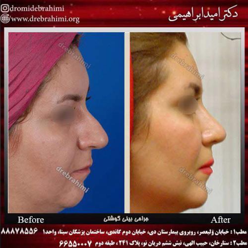 عمل-بینی-گوشتی-33
