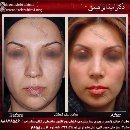 عمل-بینی-گوشتی-4