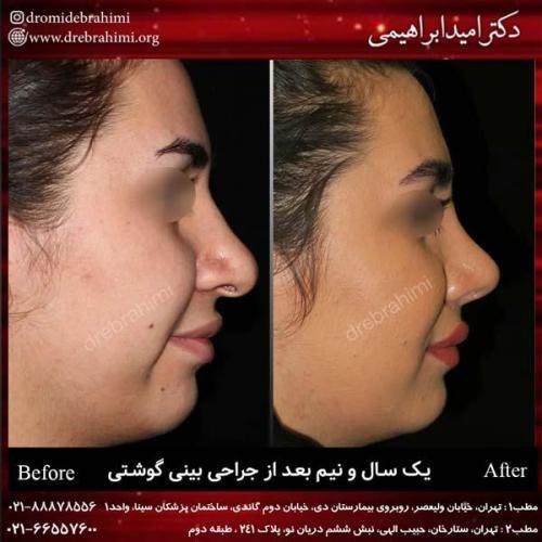 عمل بینی گوشتی 150