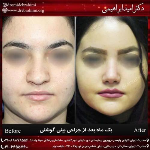 عمل بینی گوشتی 159
