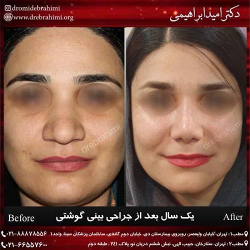 عمل بینی گوشتی 163
