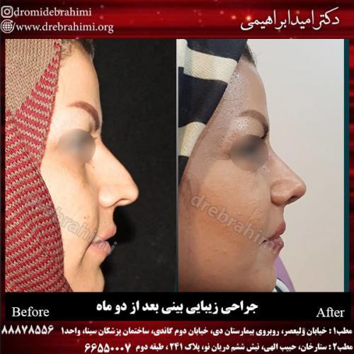 جراحی بینی 118