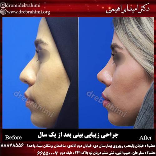 جراحی بینی 124