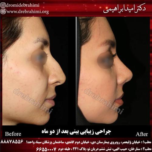 جراحی بینی 125