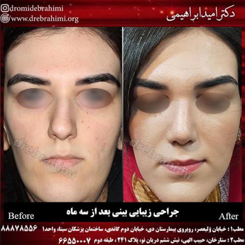 جراحی بینی 130