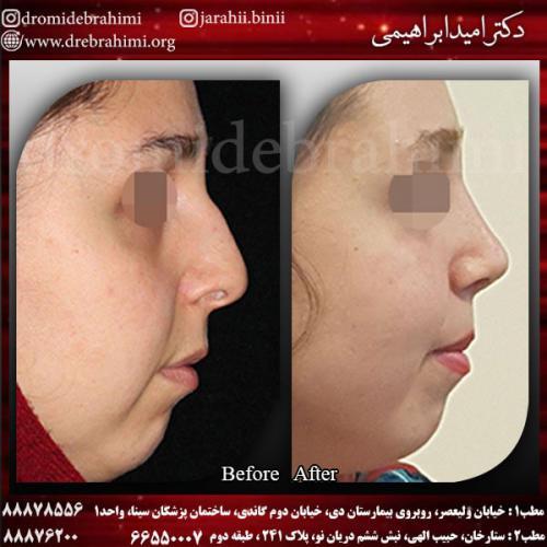 جراحی بینی 133