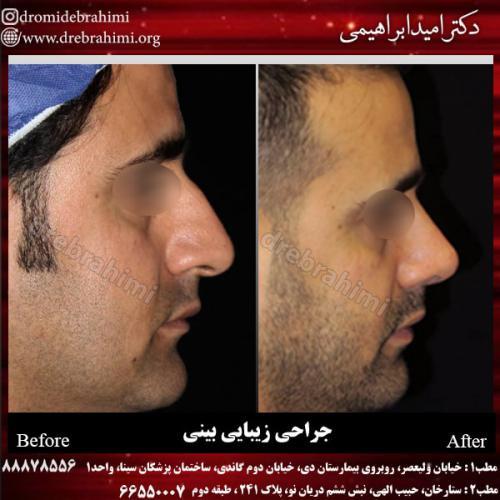 جراحی بینی 135