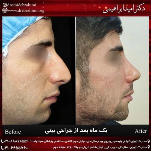 جراحی بینی 238