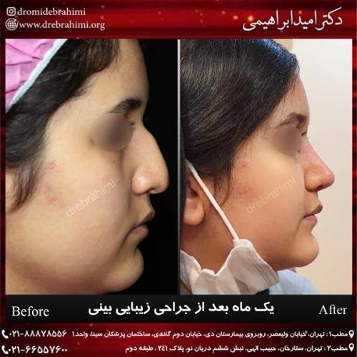 جراحی بینی 240