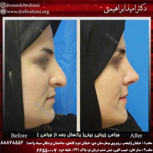 جراحی زیبایی بینی 2