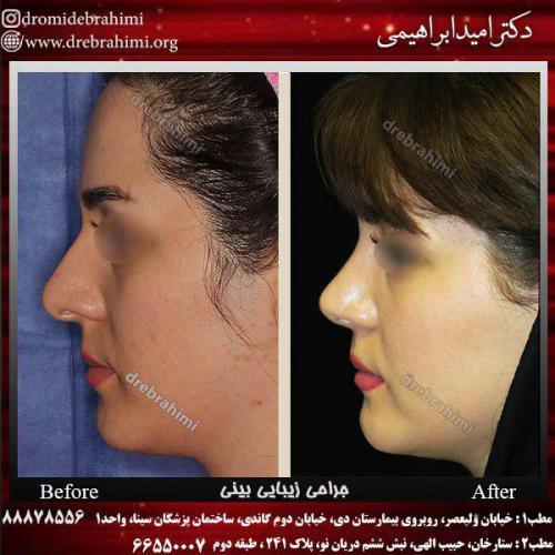 جراحی زیبایی بینی 3