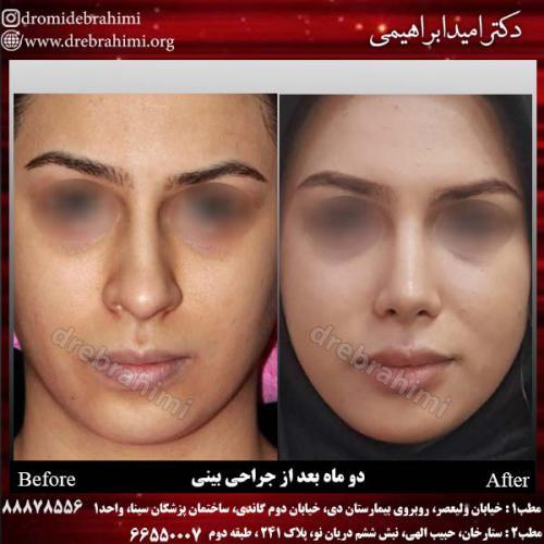 عمل زیبایی بینی 28